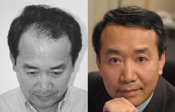 Robert Zhao before and after pictures